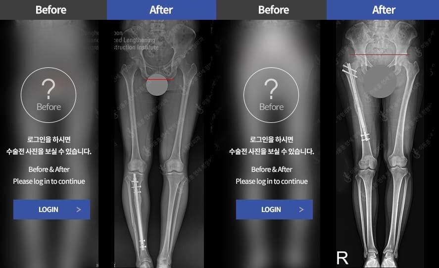 프리사이스(PRECICE)를 이용하여 다리길이 차이(하지부동)를 치료 하였습니다.
